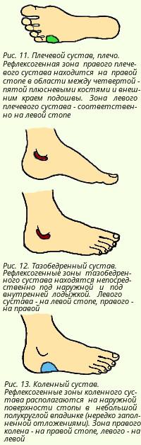 немеет левая рука и боли в суставах