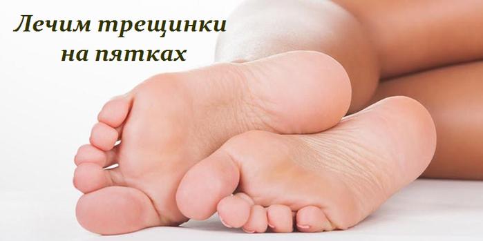 2749438_Lechim_treshinki_na_pyatkah (700x349, 226Kb)