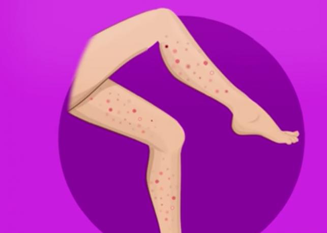 О чем говорят прыщики на вашем теле?
