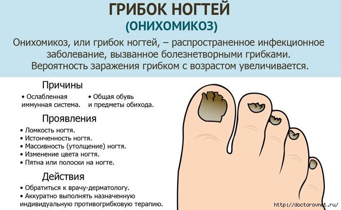 Йод, фукорцин и уксус против грибка ногтей