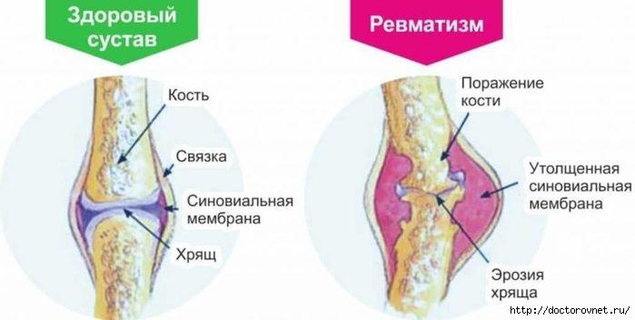 5239983_systavi_bolnie (700x352, 86Kb)