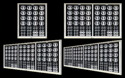 Новое производство высококачественной техники: светодиодные медицинские негатоскопы
