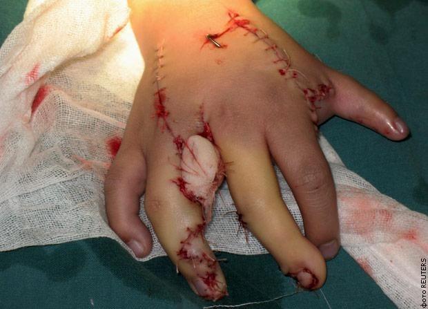 Китае прооперировали мальчика, который родился с 15 пальцами на руках