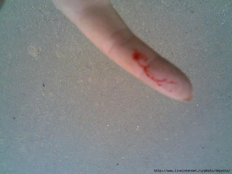 Как сделать порез на пальце 804