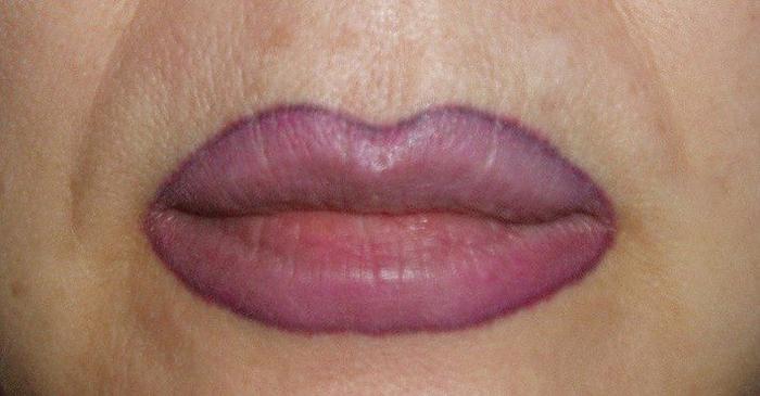 184Когда нужно делать коррекцию татуажа губ