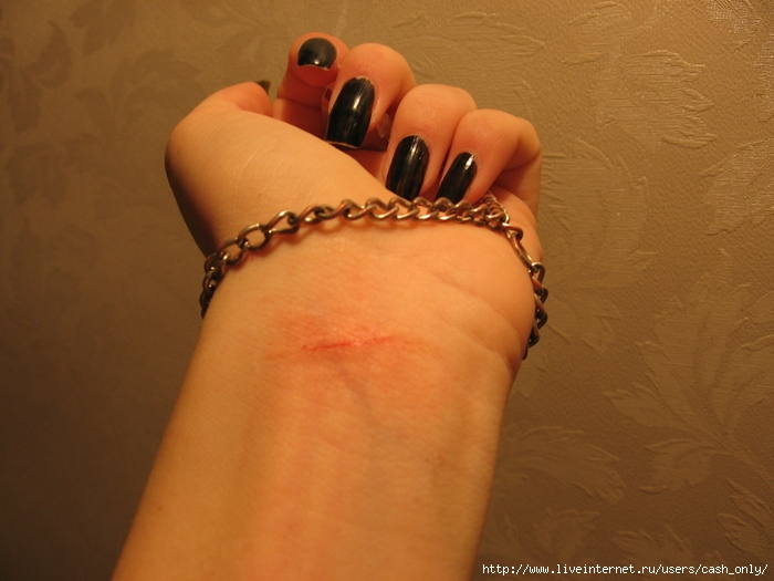 фото порезанные вены девушки