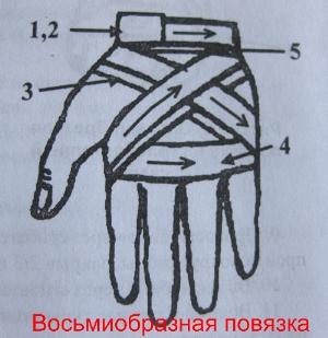Восьмиобразная повязка на лучезапястный сустав алгоритм наложение повязки на правый коленный сустав