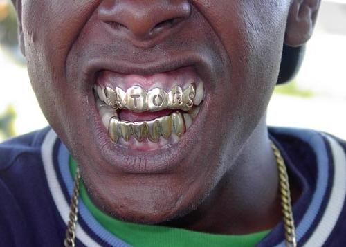 Прикол картинка мужики это золотые зубы камни в почках, фольксваген жук всемирный