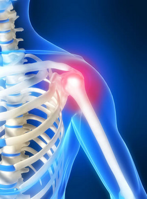 Изображение - Как снять острую боль в плечевом суставе 111013890_3720816_bol_v_pleche