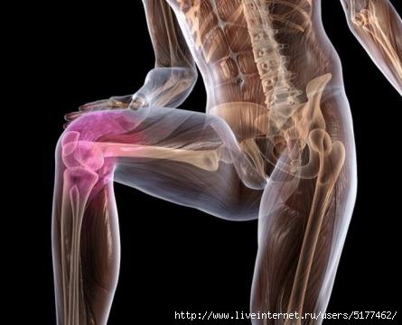 Изображение - Упражнение попова коленного сустава 127454528_5177462_5929267843b245a29bdb620