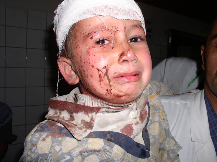 muhammed_adman.__received_cuts_to_his_head_and_face_from_shr (700x524, 329Kb)