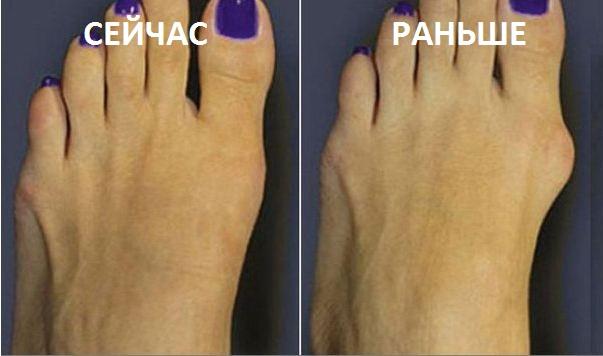 Причины появления косточек на ноге