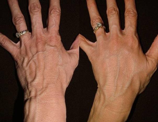 Как похудеть в пальцах рук видео