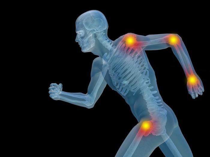Изображение - Артрит боли в суставах и мышцах 128096026_ivanchenko1