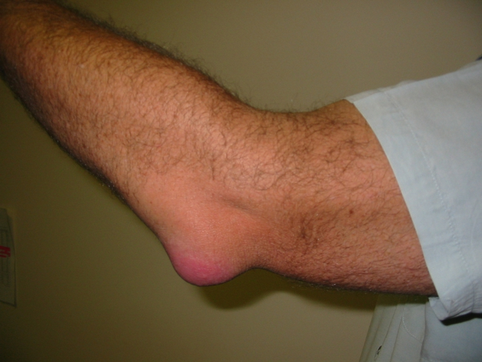 3925073_Bursitis_Elbow_WC (700x525, 209Kb)