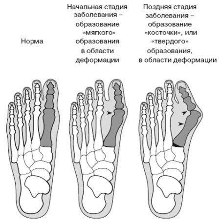 Как приостановить рост косточки на ноге большого пальца
