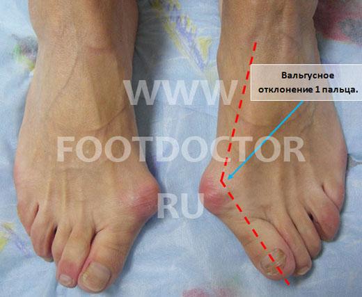 Шишки на ногах (лавровый лист на нашатырном спирте)