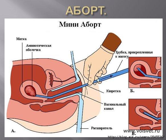 Ребёнок в утробе матери по неделям на фото 34