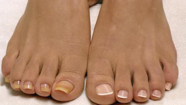 Почему ногти на ногах желтеют и утолщаются 22