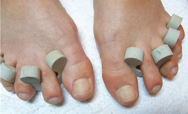 Почему ногти на ногах желтеют и утолщаются 24
