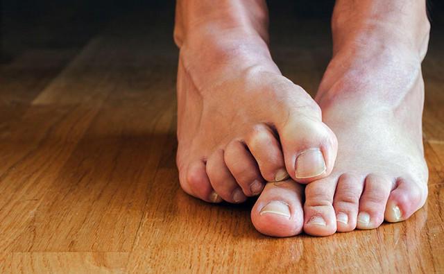 Восточная медицина грибок ногтей