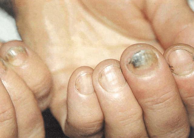 Microsporum spp grybelis gyvunams