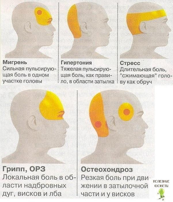 Сильная головная боль в правом виске