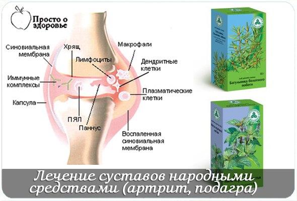Корень омега водяного при лечении суставов боли в коленном суставе лечение медикаментами