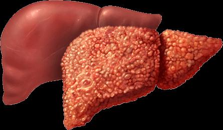 Портальная гипертензия при циррозе