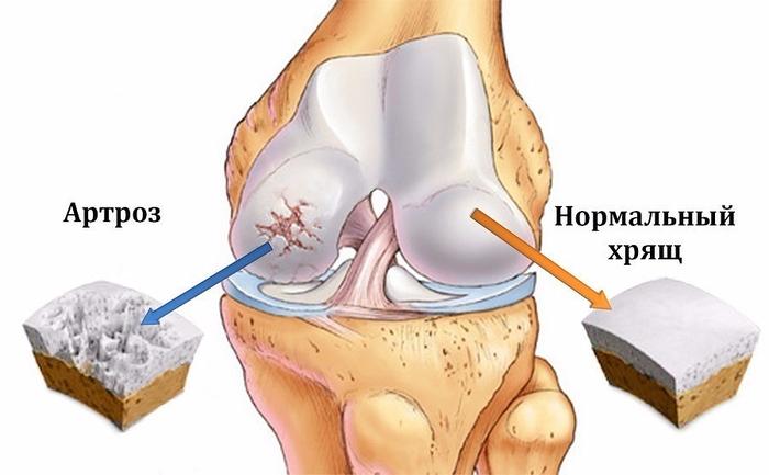 Скорая помощь при болях в суставах ног закачивание геля в коленный сустав отзывы
