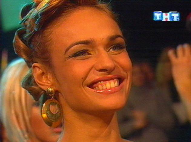 Водонаева алена ее зубы фото