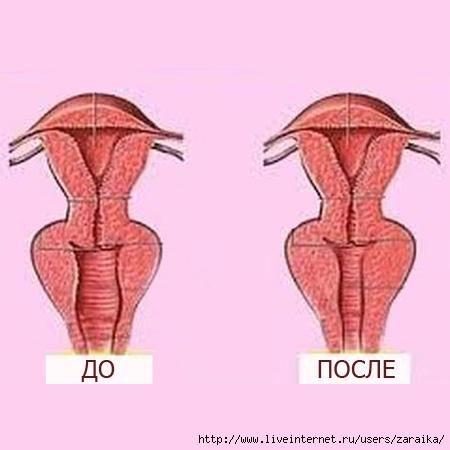 Самодельное влагалище вагина