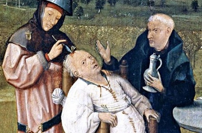 10 варварских медицинских процедур, которые практикуются до сих пор