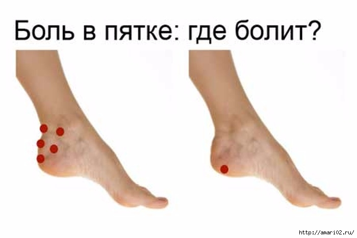 Суставы ног луиза хей лечение боли в тазобедренном суставе при беременности