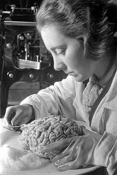 Что было с мозгом Ленина при жизни и что стало после смерти