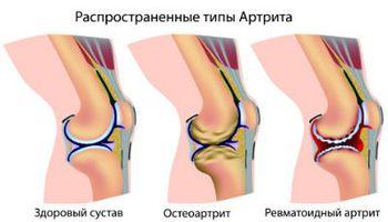 Суставы человека это интересно полиартрит коленного сустава лечение