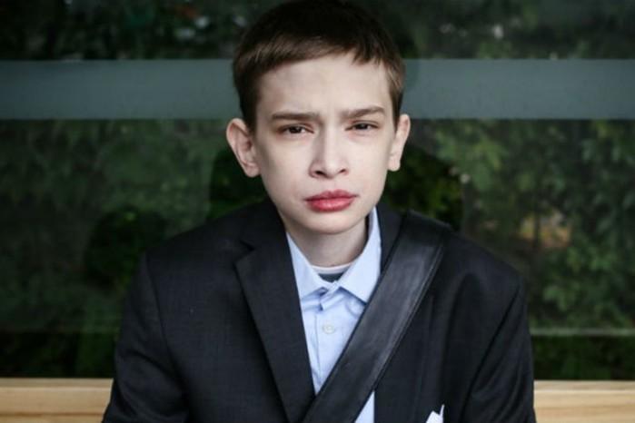 «Я ненавижу парня в зеркале»: 25-летнему поляку Томашу Надолски никто не верит