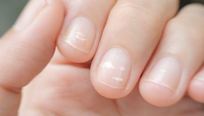 Негрибковое поражение ногтей пустота под ногтями