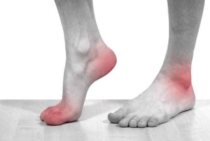 Подагра: признаки и симптомы болезни, лечение и профилактика, диета при подагре 144123048_5774028_podagra0