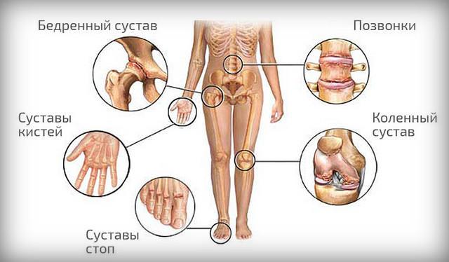 У щенка хрустят суставы потому что осгуд шляттера болит колено