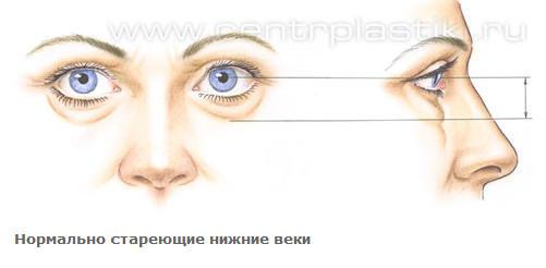 3720816_Anatomiya_stareniya_verhnih_i_nijnih_vek_6 (501x246, 13Kb)