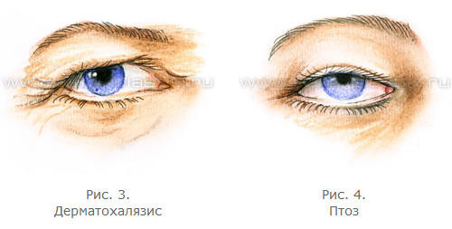 3720816_Anatomiya_stareniya_verhnih_i_nijnih_vek_8_1_ (500x253, 18Kb)