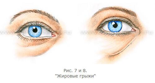 3720816_Anatomiya_stareniya_verhnih_i_nijnih_vek_10 (500x269, 17Kb)