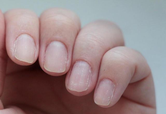 На ногтях появились поперечные бороздки фото