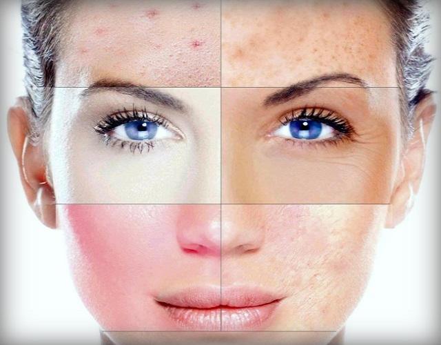 Типы кожи лица: характерные признаки и уход - Статья на GirlsArea