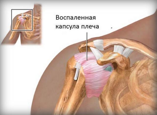 Лечебная физкультура при капсулите плечевого сустава что делать при ушибе сустава пальца ноги