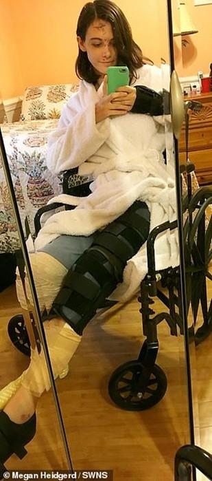 Молодая медсестра выпила водки и выпала с четвертого этажа